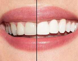 Closeup teeth before and after whitening