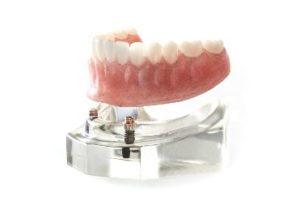 Model of a denture being seated on implants