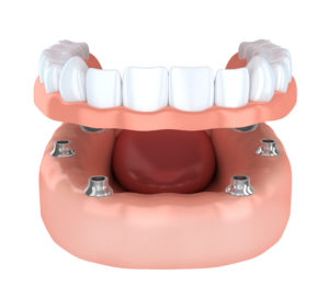 An implant-retained denture