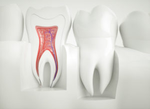 side view of root canal