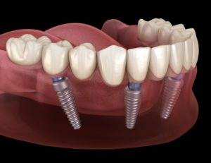 full denture retained by dental implants